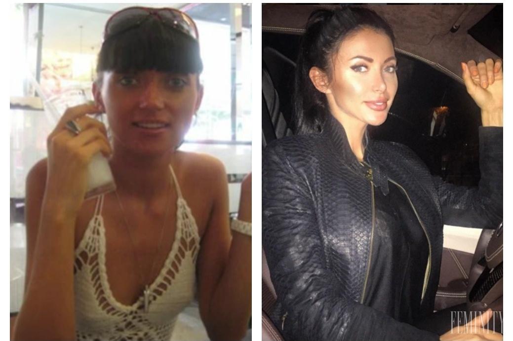 марина майер до пластики и после фото